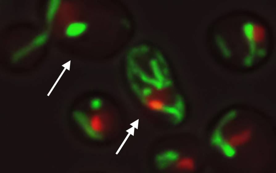 Cell research breakthrough reveals two paths to aging – BGR